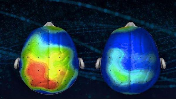 Nörobilimciler stresi %65 azaltan bir müzik keşfetti