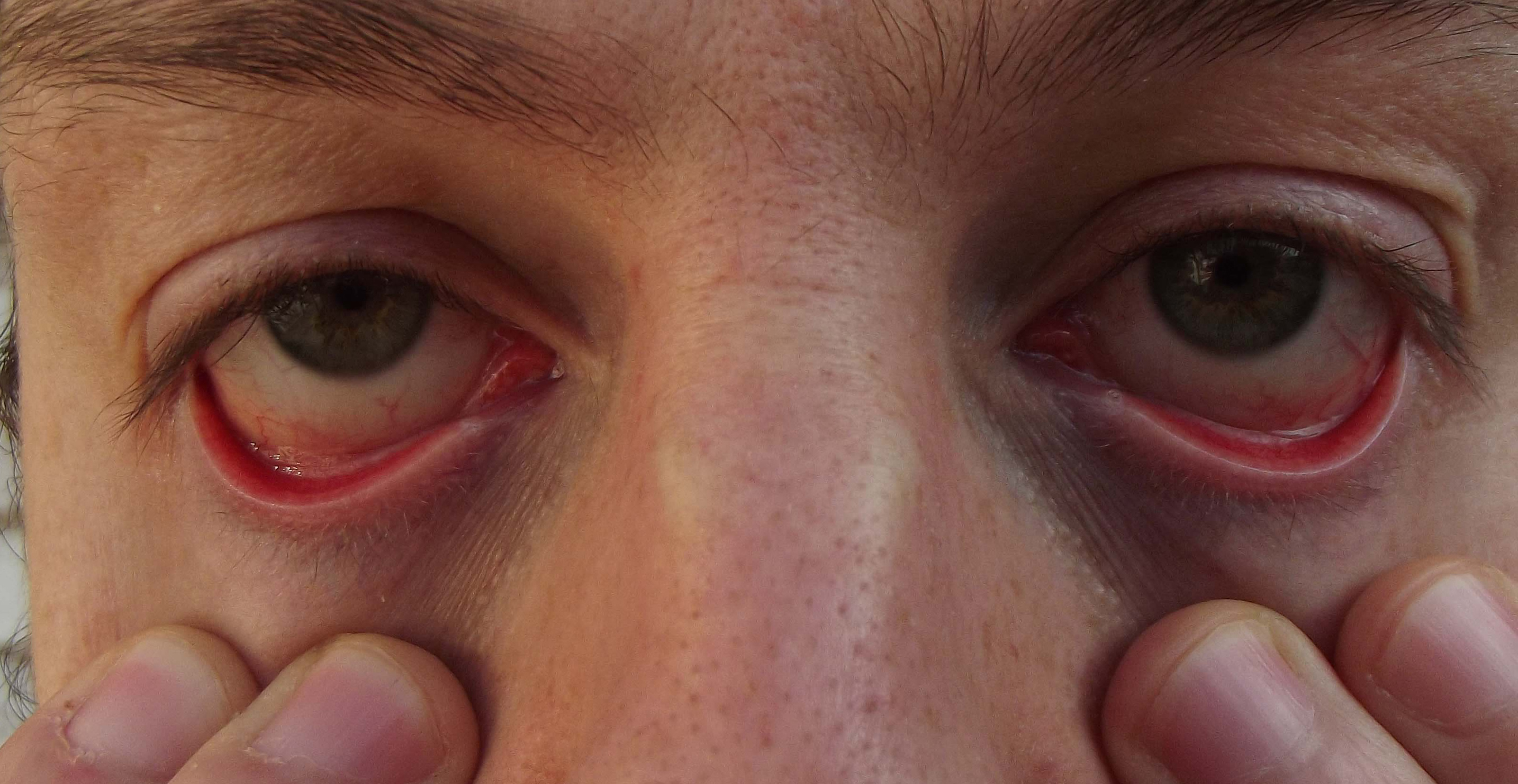 Kuru göz sendromu: tedavi, nedenleri ve semptomları